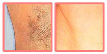 laser hair removal before and after pictures
